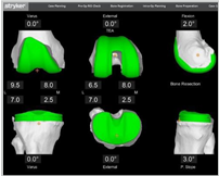 Before surgery: It all begins with a CT scan of your knee joint that used to generate a 3D virtual model of your unique anatomy. This virtual model is loaded into the system software and is used to create your personalized pre-operative plan.