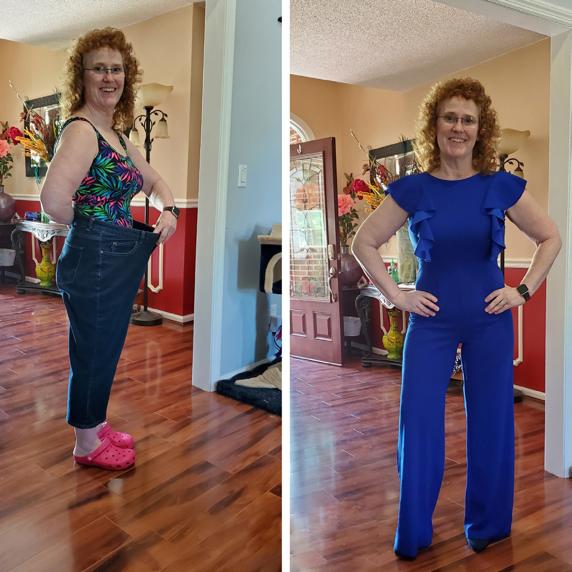 Lori N. after her weight loss surgery.