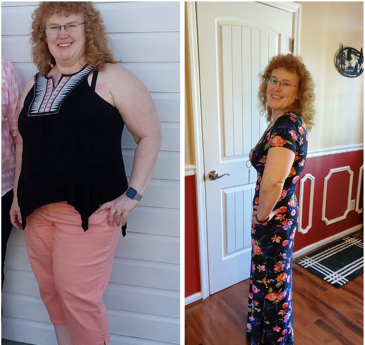 Lori N. before and after her weight loss surgery.